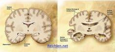 Combinaison de deux diagrammes du cerveau en un à des fins de comparaison. Dans le cerveau gauche normal, dans le cerveau droit d'une personne atteinte de la maladie d'Alzheimer